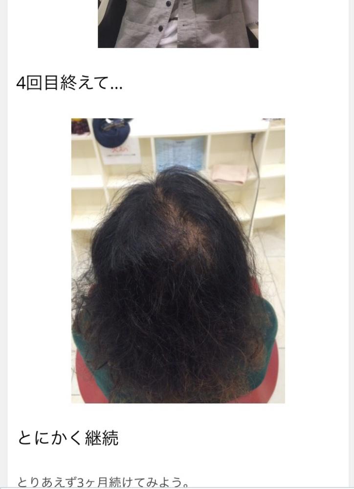 ぐっさん的髪育プロジェクト5 (3/4)